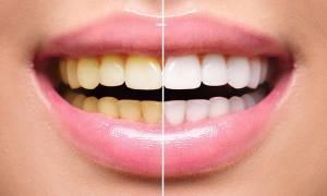 Κιτρίνισμα δοντιών: Οι 6 τροφές που πρέπει να αποφεύγετε