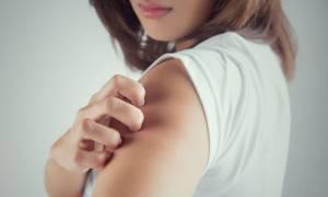 Έκζεμα ενηλίκων: 5 παράγοντες κινδύνου που πρέπει να γνωρίζετε