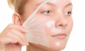 Λιπαρό δέρμα: Αντιμετώπιση με 5 φυσικά συστατικά