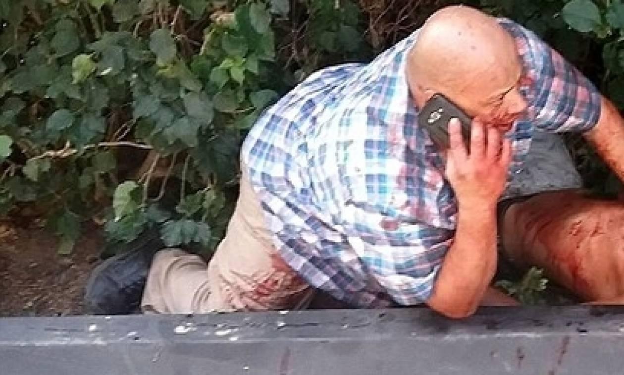 Σκληρή εικόνα: Μαχαίρωσαν το σωματοφύλακα διάσημου μοντέλου έξω από το σπίτι του