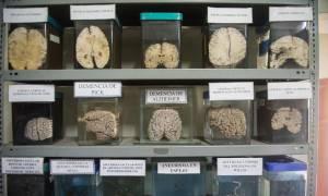 Φωτογραφίες από το μοναδικό μουσείο εγκεφάλων του Περού