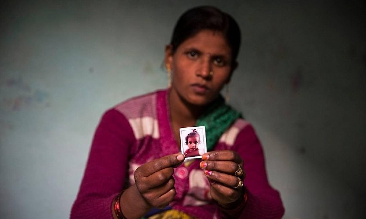 Σοκαριστικό: Επιτέθηκαν με οξύ σε 2χρονο αγόρι στην Ινδία (pics)
