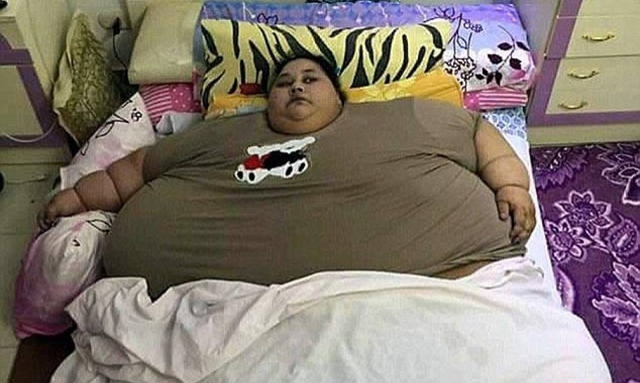 Με ειδική πτήση μεταφέρεται στην Ινδία για χειρουργείο η πιο παχύσαρκη γυναίκα στον κόσμο (pics)