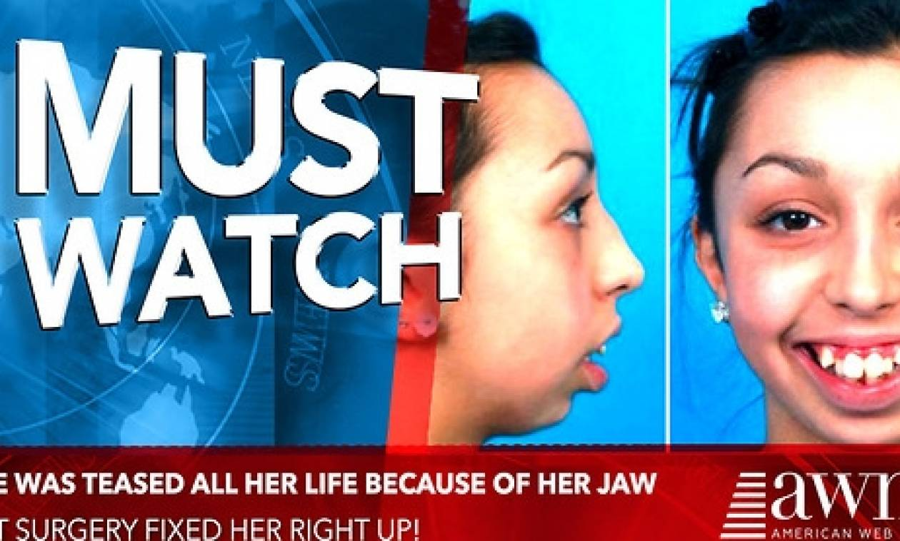 Την κοροϊδεύανε σε όλη της τη ζωή για τα δόντια της! Σήμερα παίρνει την πιο γλυκιά εκδίκηση (video)