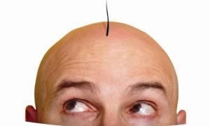 Ανατρεπτική έρευνα για τη φαλάκρα: Δεν φαντάζεστε από πού την κληρονομούν οι άνδρες