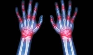 Ρευματοειδής αρθρίτιδα: Τρεις τρόποι για να ανακουφιστείτε από τα συμπτώματα