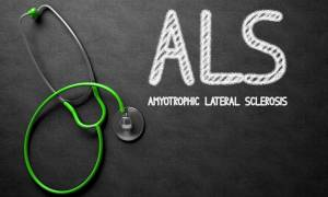 Νόσος του Λου Γκέριγκ: Διατροφικό παράγοντα κινδύνου ανακάλυψαν οι επιστήμονες