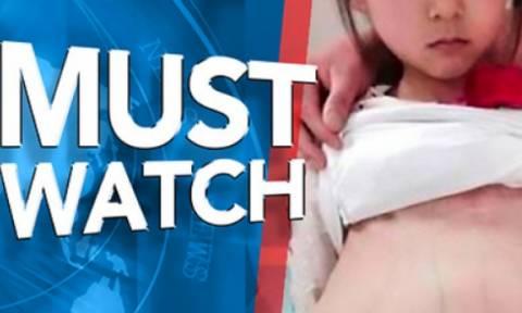 Μια 12χρονη μπήκε στο νοσοκομείο επειδή η κοιλιά της μεγάλωνε! Οι γιατροί έπαθαν σοκ... (video)