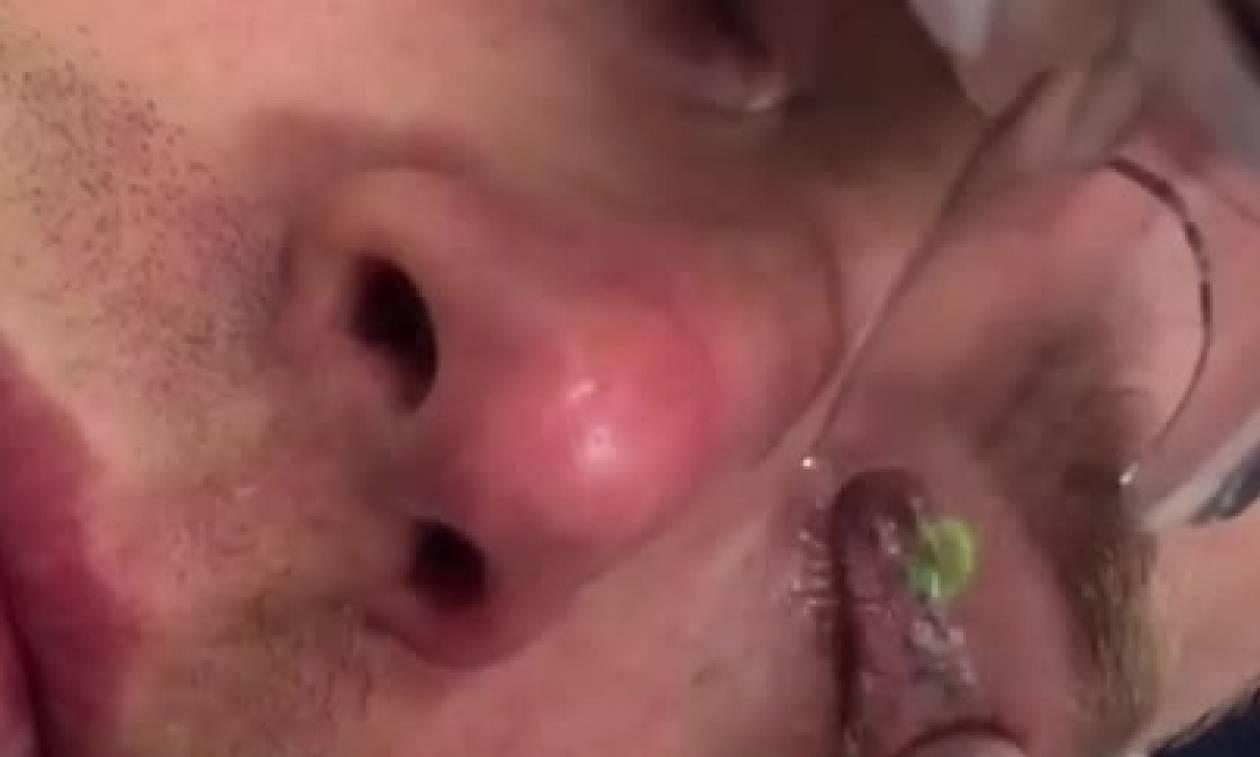 Σκληρές εικόνες: Εκανε τατουάζ στα μάτια του και το μετάνιωσε πικρά! (Video)