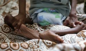 SOS από τον ΟΗΕ: Η Υεμένη κινδυνεύει να βυθιστεί στο λιμό