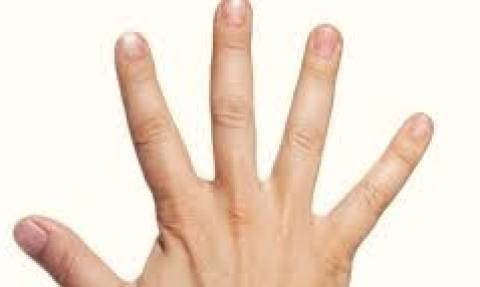 Δεν άντεχε τους αφόρητους πόνους στο δάκτυλο και αυτό που έκανε δεν το περίμενε κανείς... (video)
