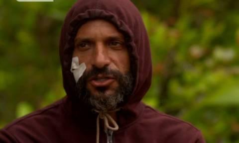 Survivor: Τι έπαθε στο πρόσωπό του ο Χρανιώτης;