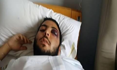 Τρόμος στο Γκάζι: Άγριος ξυλοδαρμός 17χρονου έξω από νυχτερινό κέντρο (vid)