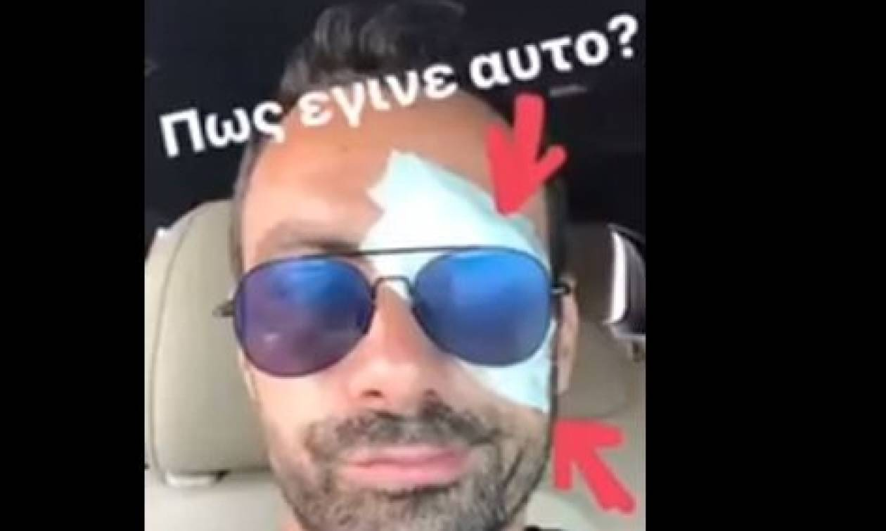 Survivor: Πώς έγινε αυτό; Ποιος... βούλωσε το μάτι του Σάκη Τανιμανίδη; (Video)