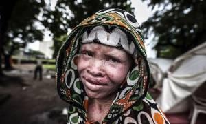 Κυνήγι «μαγισσών» στην Τανζανία: Τουλάχιστον 80 γυναίκες στραγγαλίστηκαν, μαχαιρώθηκαν ή κάηκαν