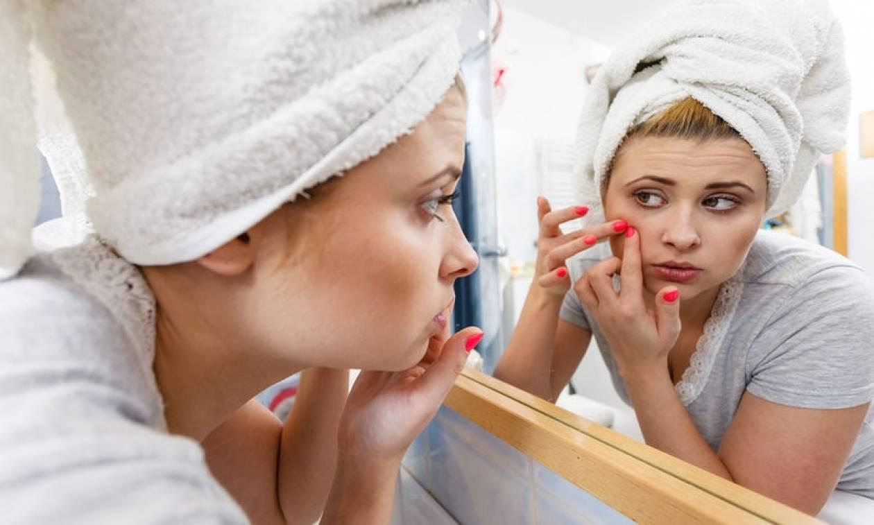 Οδοντόκρεμα στο σπυράκι: Έχει αποτέλεσμα τελικά;
