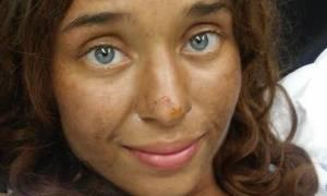 Γυναίκα βρέθηκε ζωντανή τέσσερις μήνες μετά την εξαφάνισή της – Πώς επιβίωσε μόνη στη ζούγκλα (pic)