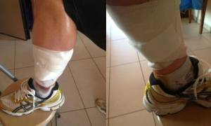 Και δεύτερη επίθεση από σκυλιά στη Λαμία: Θύμα γνωστός αθλητής (pic)