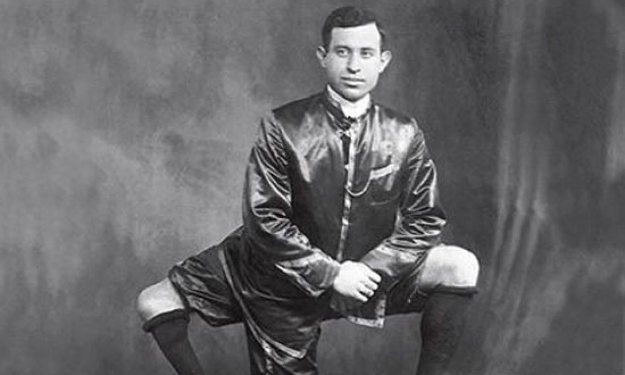 Σαν σήμερα το 1966 «έφυγε» ο Φραντζέσκο Λεντίνι, ο άνδρας με τα 3 πόδια και τα 2 γεννητικά όργανα