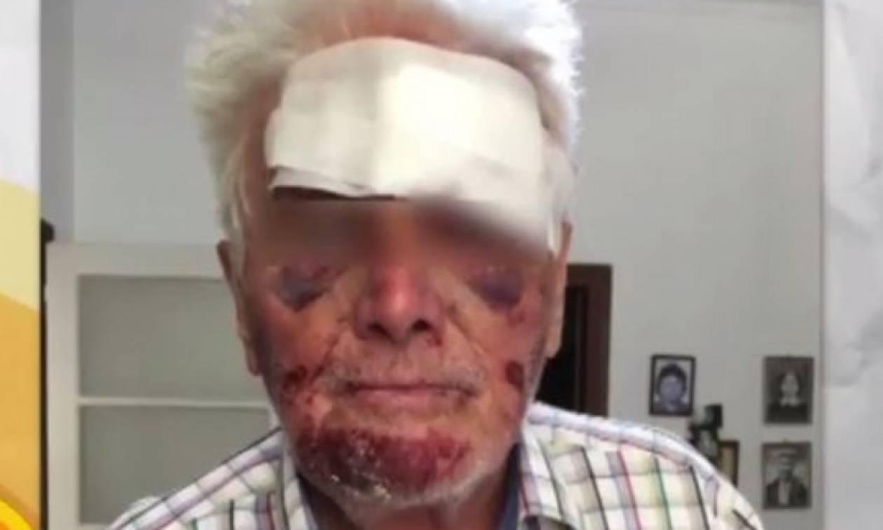 Φρίκη για 90χρονο στο Γαλάτσι: Τον ξυλοκόπησαν και τον μαχαίρωσαν για 5 ευρώ (vid)