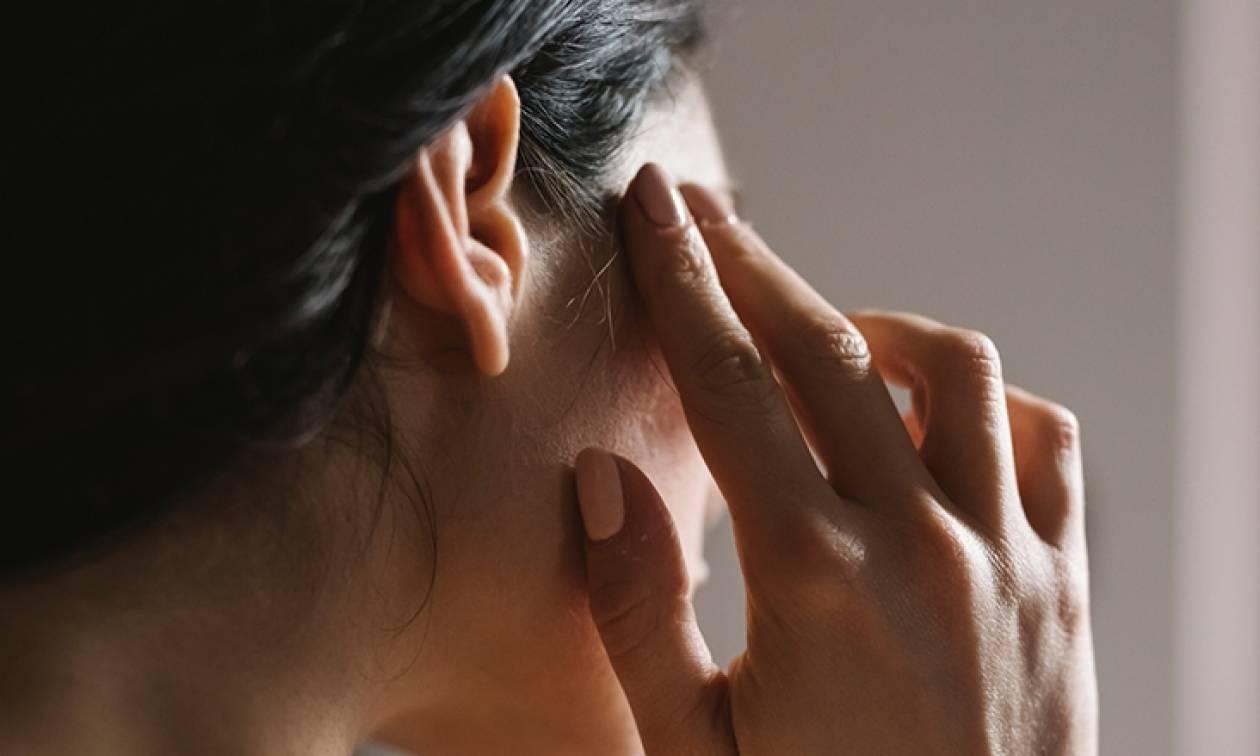 Άλλο πονοκέφαλος, άλλο ημικρανία - Πώς τα ξεχωρίζουμε