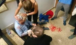 Καταλονία: Το αιματοβαμμένο δημοψήφισμα - Οι εικόνες που σόκαραν τον πλανήτη