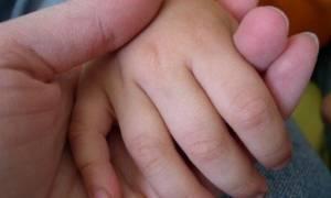 Ανεμβολίαστο βρέφος το πρώτο θύμα της ιλαράς στην Ελλάδα