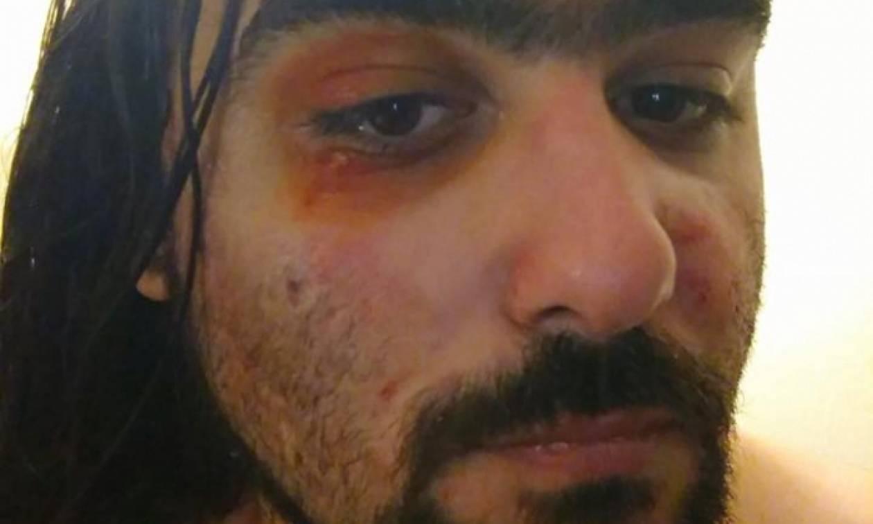 Θεσσαλονίκη: Έγδυσαν και ξυλοκόπησαν ποδηλάτη επειδή φορούσε μπλούζα που έγραφε «Μολών λαβέ»