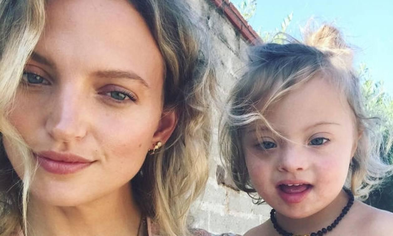 «Όταν έγινε τριών μηνών ο γιος μου ανακάλυψα ότι έχει Σύνδρομο Down»: Το γνωστό μοντέλο συγκλονίζει