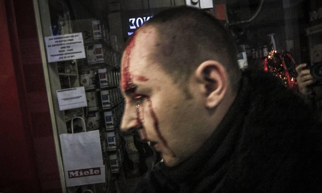 Εισβολή του ΠΑΜΕ στο υπουργείο Εργασίας - Τραυματίστηκαν διαδηλωτές και αστυνομικός