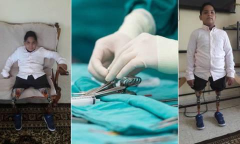 Συγκίνηση: 9χρονος έχασε και τα δύο του πόδια – Παλεύει από τη μέρα που γεννήθηκε (pics)
