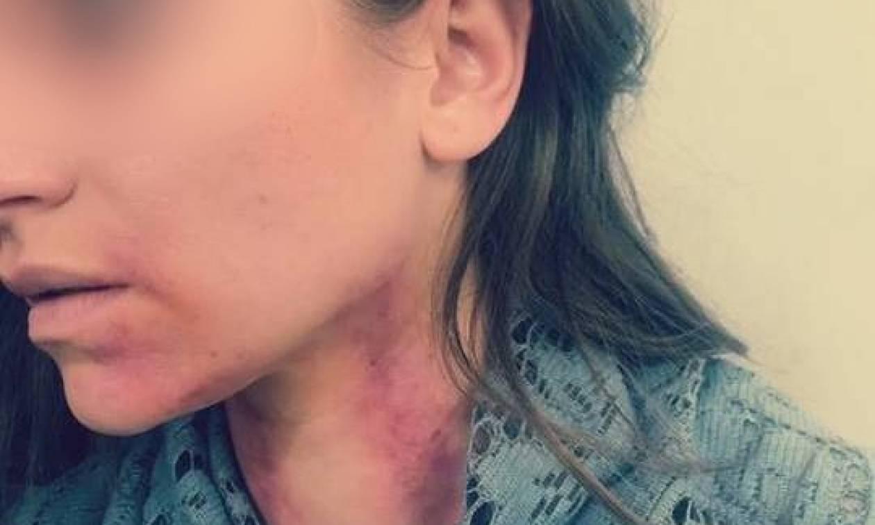 Η Ελληνίδα ηθοποιός, ο χωρισμός και οι εκδορές στο λαιμό - Τι συνέβη;