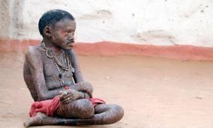 Ο άνθρωπος-φίδι της Ινδίας (pics)