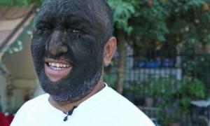 Θα πάθετε σοκ! Αυτός είναι ο πιο τριχωτός άνδρας στον κόσμο. Τον φωνάζουν λυκάνθρωπο (video)