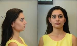 Θεσσαλονίκη: Αυτή είναι η 22χρονη που έκλεβε πορτοφόλια