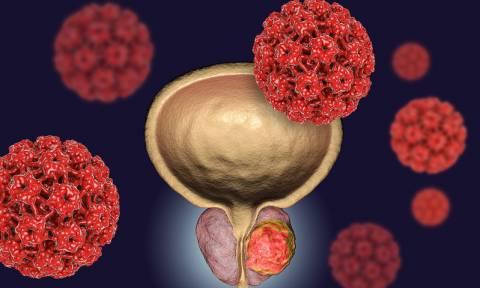 Κονδυλώματα: 5 παράγοντες που αυξάνουν τον κίνδυνο