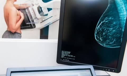 Πυκνότητα μαστών: Σε ποιο βαθμό επηρεάζει τον κίνδυνο καρκίνου