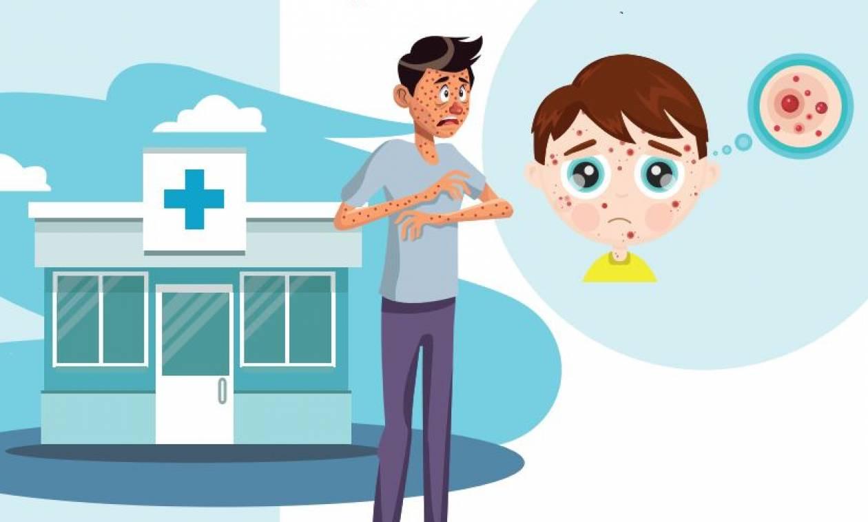 Ιλαρά: Πάνω από 3.220 τα κρούσματα – Καμπάνια του ΚΕΕΛΠΝΟ για την ανάγκη εμβολιασμού