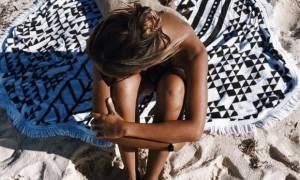 Κάηκες από τον ήλιο; 4 tips που πρέπει να ακολουθήσεις για να ανακουφιστείς