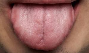Μαύρο χνούδι στη γλώσσα: Το περιστατικό που σόκαρε τους γιατρούς (φωτο)