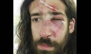 Καταγγελία για άγριο ξυλοδαρμό στελέχους του ΣΥΡΙΖΑ από μέλη της «Χρυσής Αυγής»