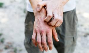 Ψωρίαση vs λύκος: Τα κοινά συμπτώματα και οι διαφορές