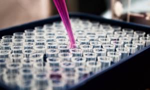 Θρίλερ στην Πρέβεζα: Στο DNA του κρανίου η απάντηση - Ανήκει στην Αγγελική;