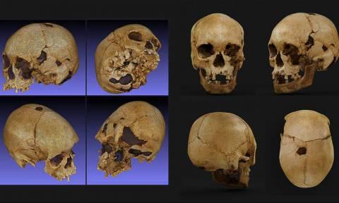 Βραζιλία: «Θαύμα» στα αποκαΐδια του Εθνικού Μουσείου - Βρέθηκε διαλυμένο το κρανίο της «Λουτσία»