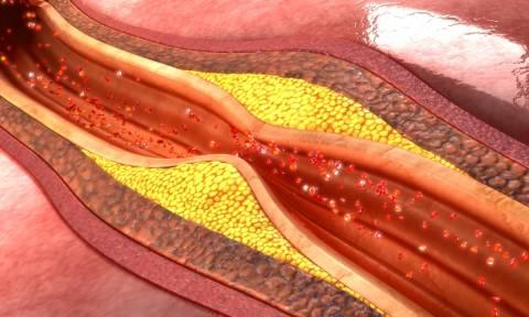 Δυσκαμψία αρτηριών: Πόσο αυξάνει τον κίνδυνο άνοιας