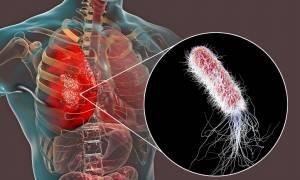 Κυστική ίνωση: Πώς να προστατεύσετε τους ασθενείς από τη γρίπη