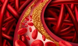 Χαμηλή χοληστερόλη: Γιατί μειώνει τον κίνδυνο Αλτσχάιμερ